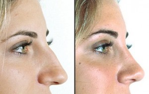 webmd_rm_photo_of_before_and-_after_nose_job